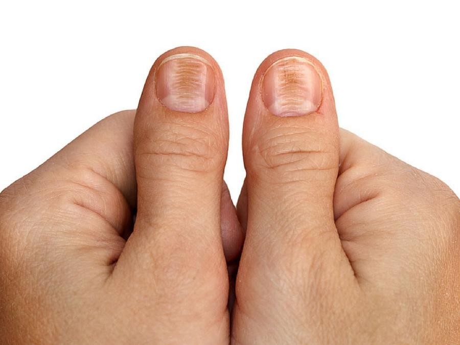 Se è possibile guarirà un fungo di unghie senza targhe