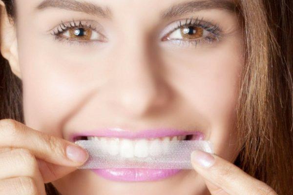 strisce sbiancanti denti